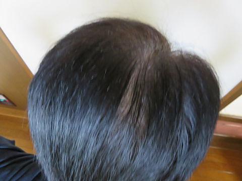 2017年5月頃の頭頂部
