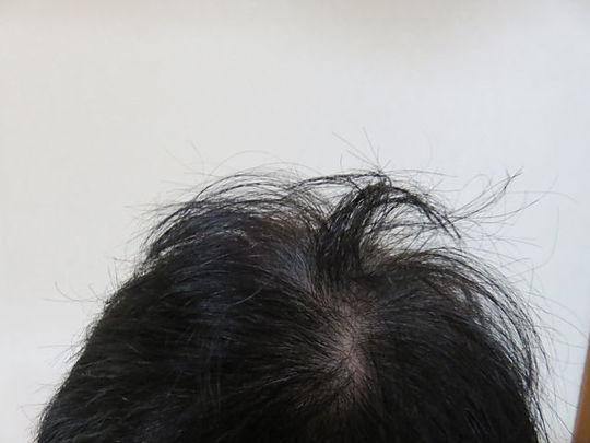 髪の毛の根元を濡らしてドライヤーで乾かした直後